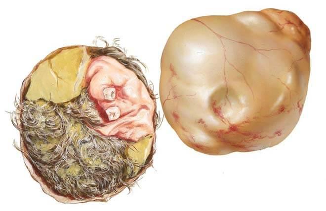дермоидная опухоль
