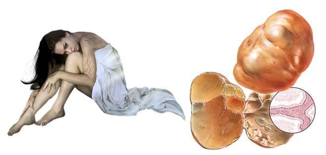 как выглядит псевдомуцинозная цистаденома яичников изнутри