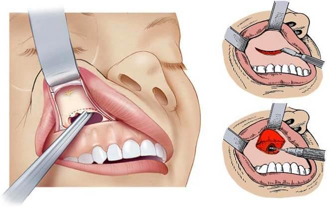 как проводят гайморотомию при кисте носовых пазух