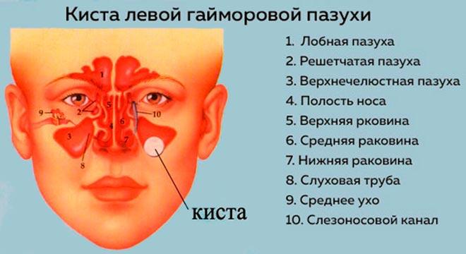 пазухи носа и киста