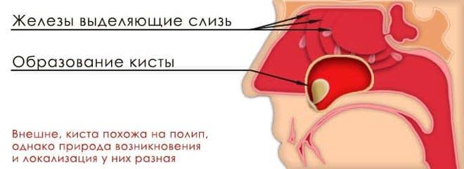 киста носовой пазухи