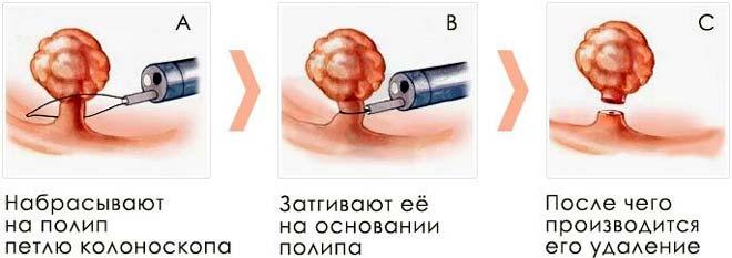 этапы полисинусотомии при полипах пазух носа