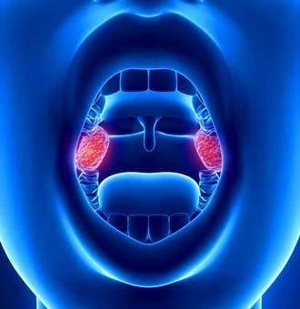рак миндалины, как осложнение после кисты