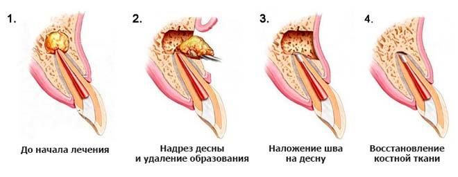 этапы цистэктомии гранулемы зуба