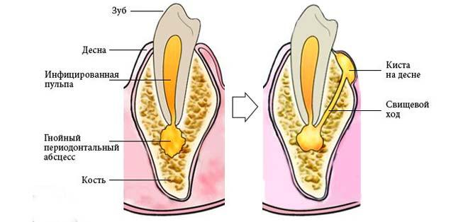 гнойный абсцесс может привести к развитию кистозной опухоли десны