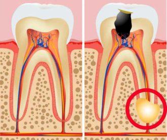 гранулематозное образование на корне зуба