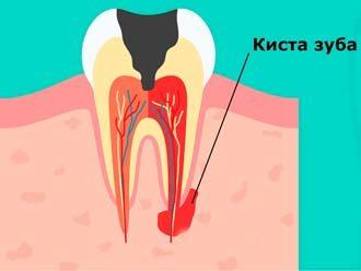 прикорневая киста и зуб