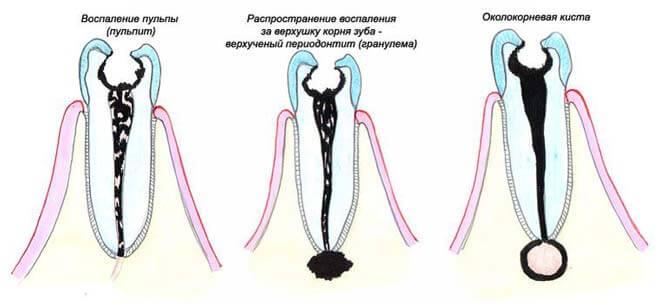 этапы образования кистозного узла на зубных корнях