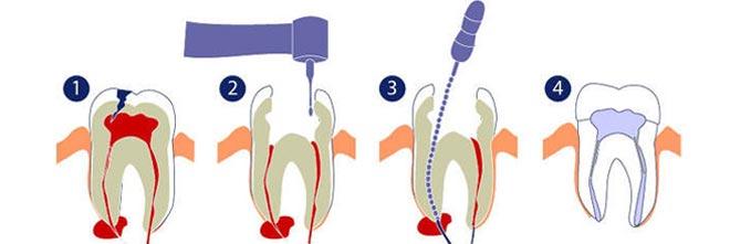 процесс терапевтического лечения кистозного узла в районе корня зуба