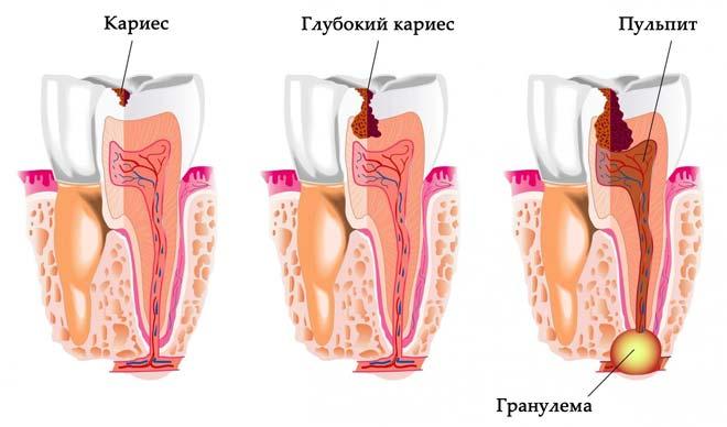 процесс развития гранулематозного образования в десне