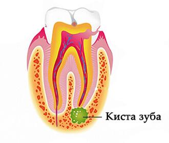зуб с кистой