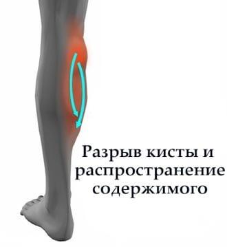 разрыв кисты беккера и распространение синовиальной жидкости по голени