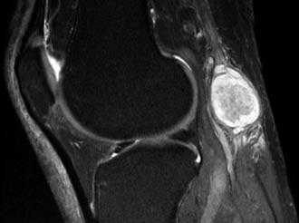 снимок кистозной капсулы колена