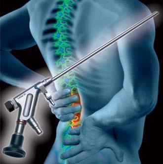 эндоскоп и человек спиной