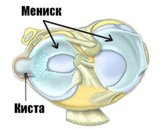 кистозная опухоль в колене