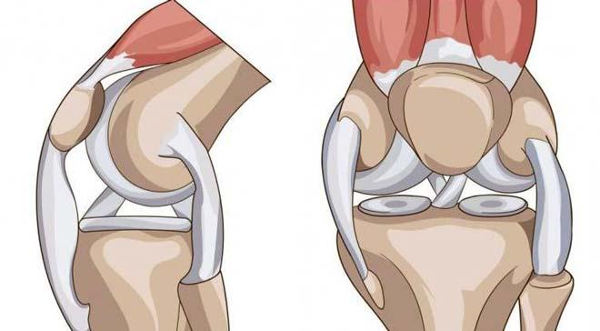 Параменисковая киста коленного сустава лечение
