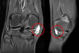 снимок параменискового образования колена