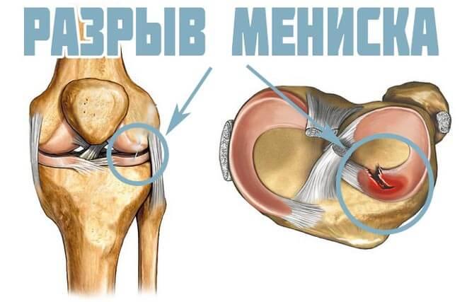 разрыв латеральной связки колена