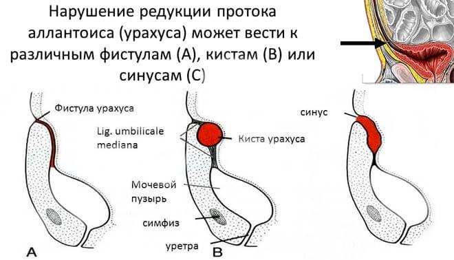 новообразования в области мочевого пузыря