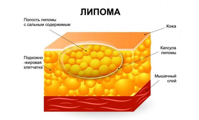 жировик грудной железы