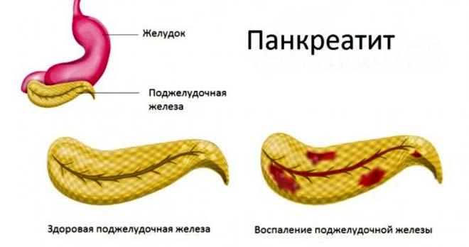 здоровая железа и с панкреатитом