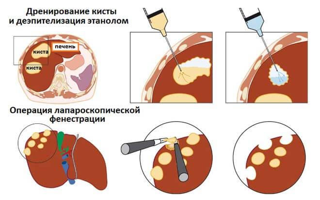 процесс фенестрации