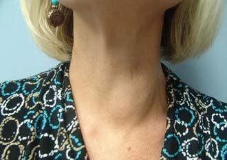 опухла шея