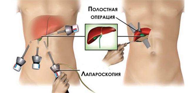 полостное удаление и лапароскопия