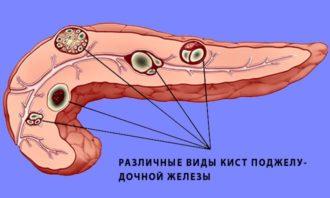Киста хвоста поджелудочной железы прогноз