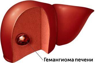 гемангиома в печени у взрослого пациента