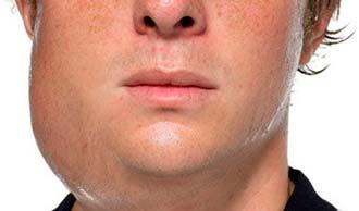 крупный узел в области рта