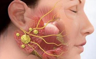 множественные аденоматозные узлы