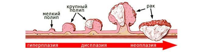 стадии малигнизации