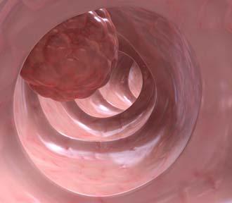 тканевое образование на слизистой