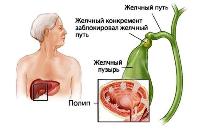 тканевые узлы