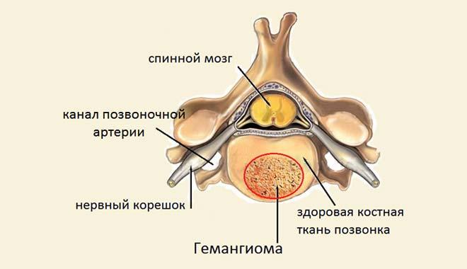 вертебральная ангиома позвонка