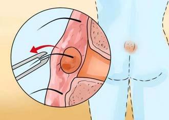 процесс формирования кистозной капсулы на копчике у мужчин и женщин