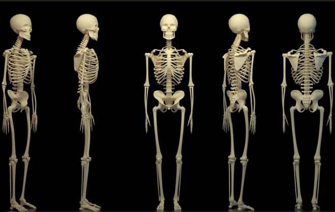 Компактная остеома теменной кости