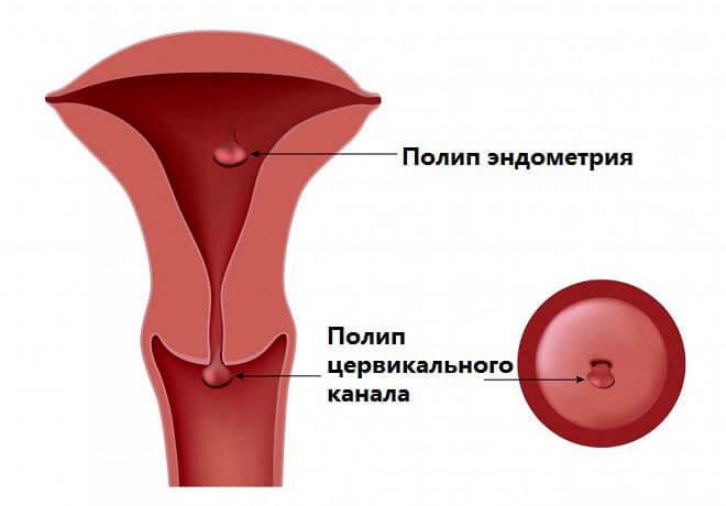 полипозные узлы эндометрия