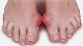 деформация первого пальца ноги
