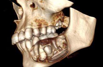 доброкачественное образование в челюсти