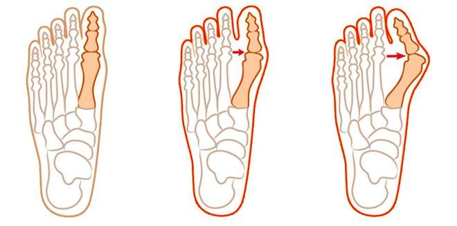 процесс образования шишки на ноге