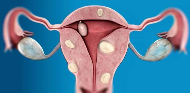 многочисленные миомы у женщины