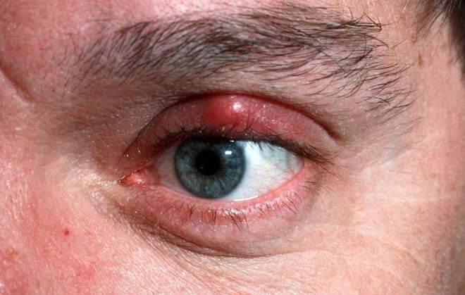 Халязион верхнего века: лечение и фото заболевания