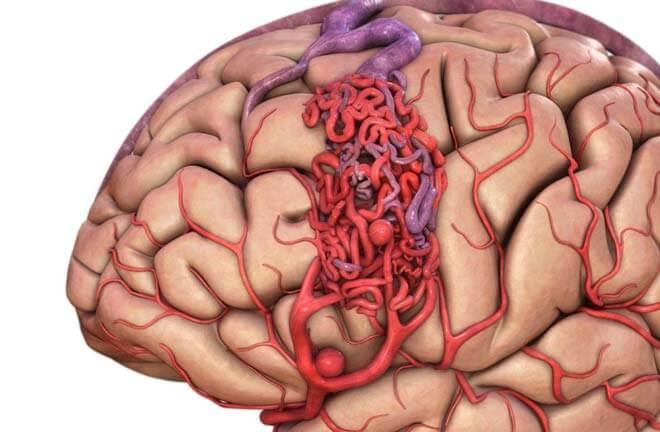 ангиоматозное образование в мозге человека