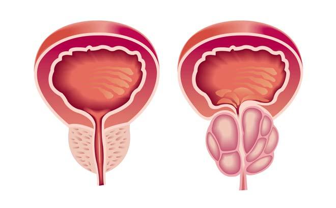 Аденома простаты у мужчин: что это, причины, симптомы и лечение