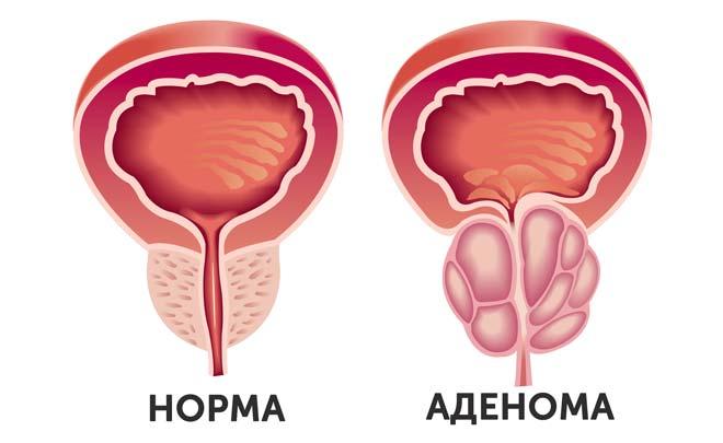 предстательная железа мужчины в норме и с аденомой