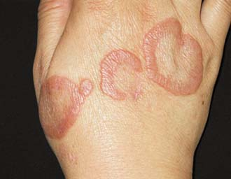 актинические гранулематозные новообразования на руке у ребенка