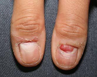 гранулематозный узел ногтя