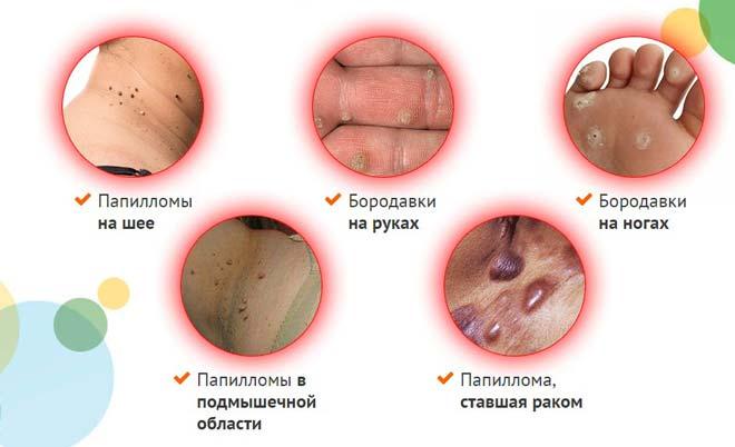 бородавки на ногах и других частях тела человека